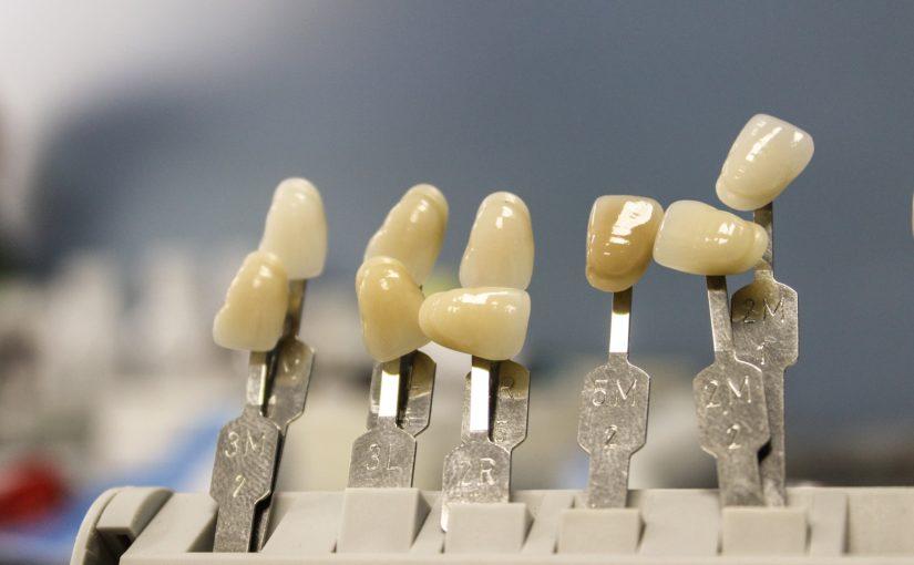 Piękne nienaganne zęby oraz wspaniały prześliczny uśmieszek to powód do płenego uśmiechu.